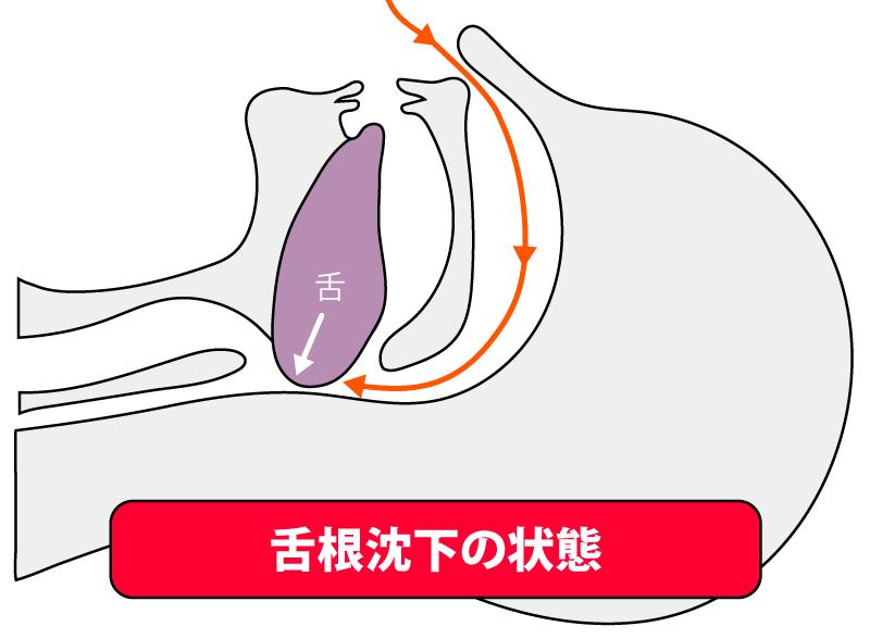 舌根沈下の状態